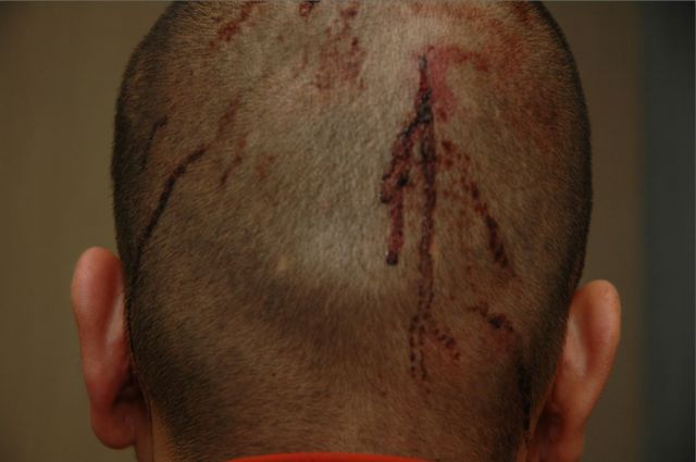 Cuts on Zimmerman's head the night of the shooting: State of Florida